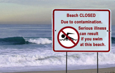 Beach closure sign due to bacterial contamination